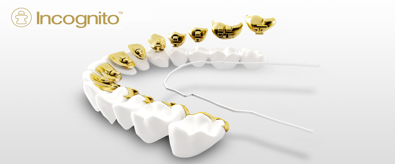 Aparat dentar Incognito - un aparat ortodontic invizibil