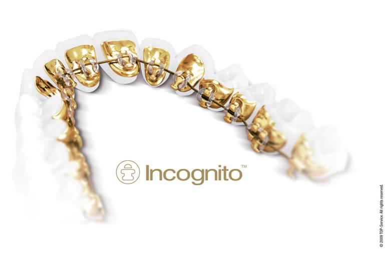 Aparat dentar (ortodont) Incognito montat în spatele dinților