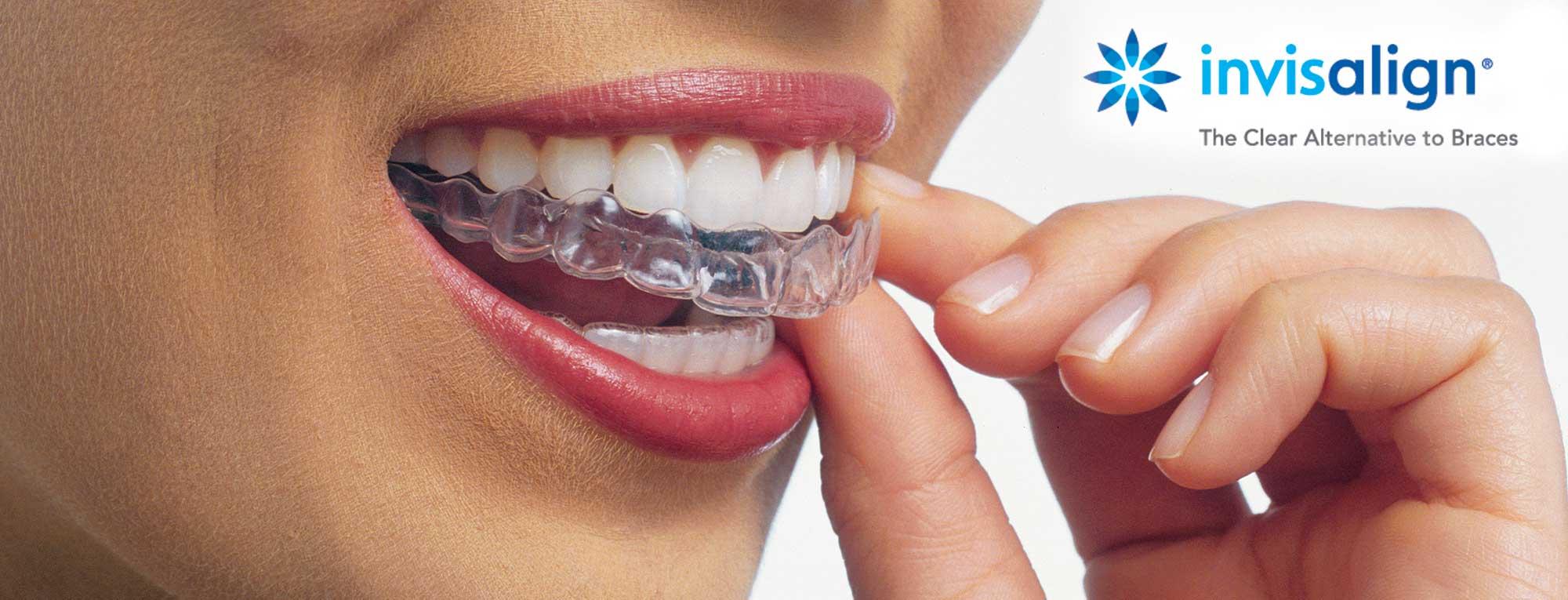 Tânără cu aparat dentar invizibil Invisalign