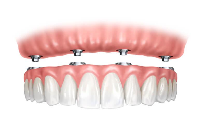 Desen reprezentand proteza dentara pe implanturi