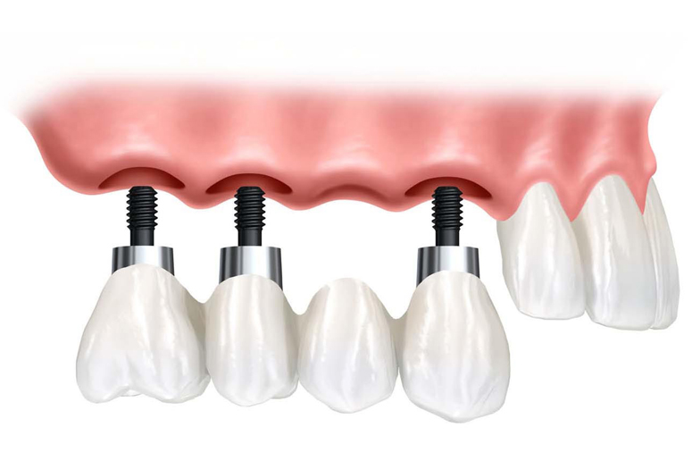 punte-dentara-pe-implanturi-dr-leahu