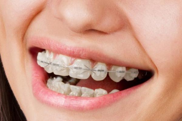 aparat-dentar-ceramica
