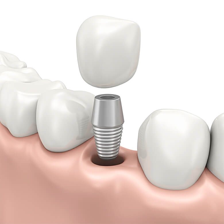 implant dentar1_780