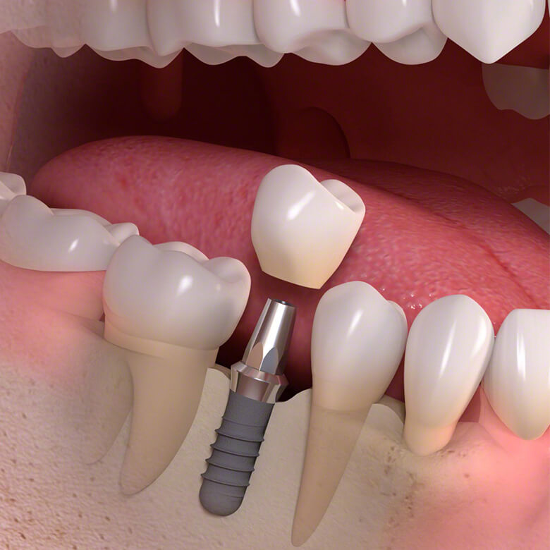 Coroana dentara pe implant dentar descoperit