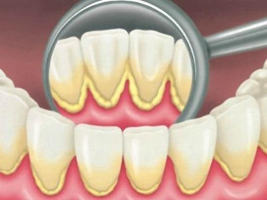 De ce este tartrul periculos pentru sănătatea dentară
