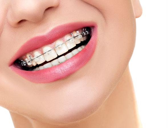 Cum să îți cureți dinții atunci când porți aparat dentar