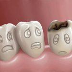 carii-dentare