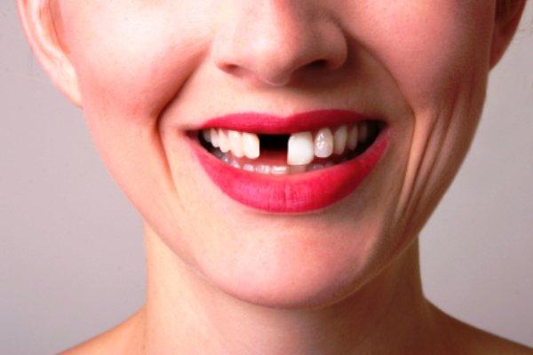 14 cauze pentru pierderea dinților