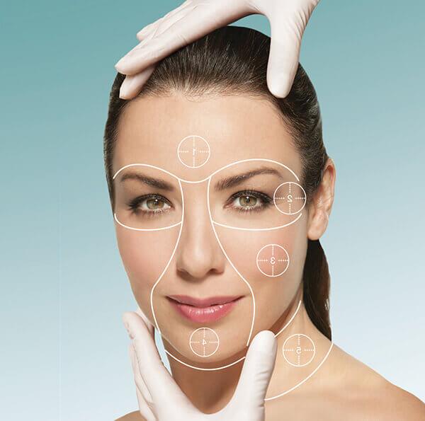 Grafica ce ilustrează punctele de pe tenul unei femei, unde urmează să fie realizate injecții PRGF, pentru o piele fără riduri