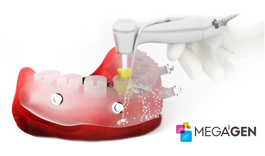 Aparat R2GATE de la Megagen, pentru implant dentar precis