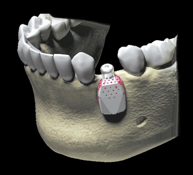 Membrana iGen pentru restaurarea gingiei, in implantologia dentară digitalizată