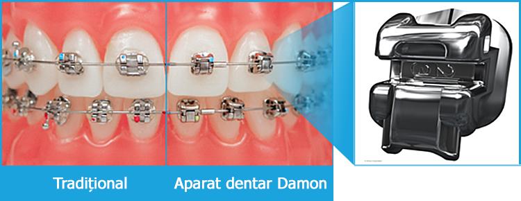 Diferența dintre un aparat dentar tradițional și aparatul dentar Damon cu sistemul autoligaturant