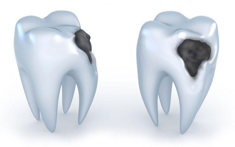 Caria dentară –cea mai răspândită boală