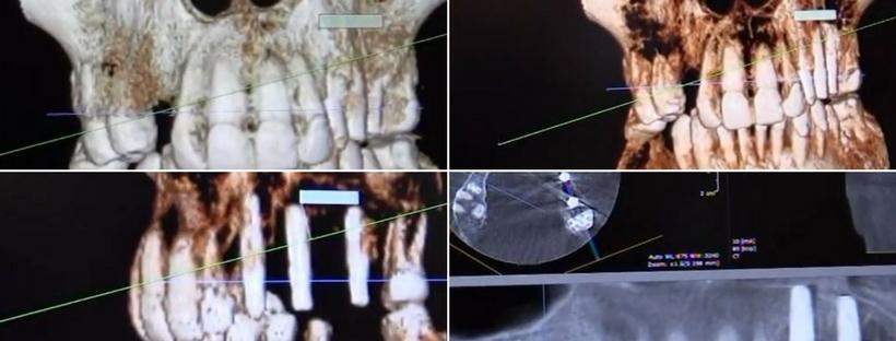 Tomografia computerizată pentru stabilirea planului de tratament cu implant dentar