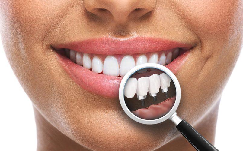 Zambet de femeie cu dinti albi si lupa care arata 3 coroane dentare pe implanturi