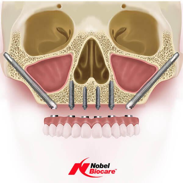 Reprezentare grafica a maxilarului cu implanturi dentare zigomatice Nobel Biocare
