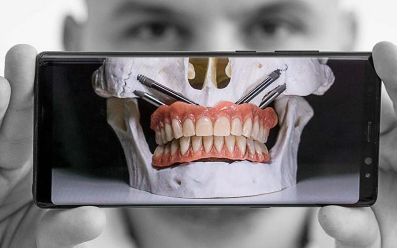 Implanturile zigomatice, totul despre cele mai complexe implanturi din medicina dentară