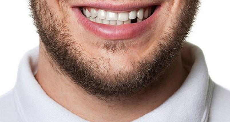 Ce să NU faci cu dinții? Obiceiuri care îți pot distruge dantura