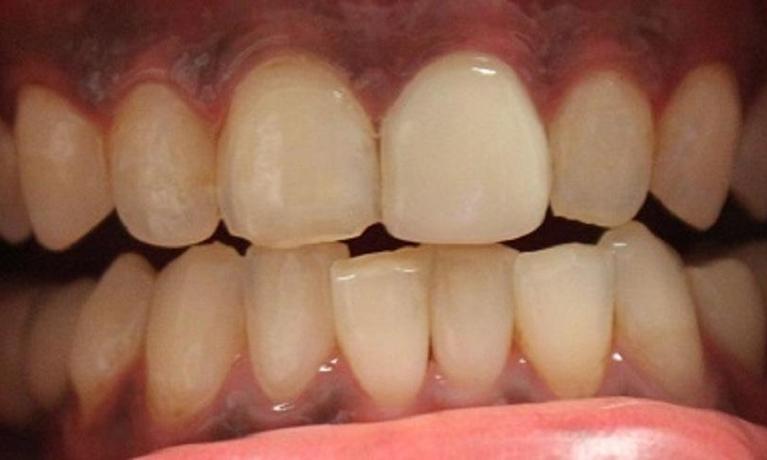 Ce se întâmplă cu dinții care se ciobesc sau se crapă ușor?