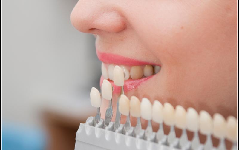 De ce se îngălbenesc dinții?