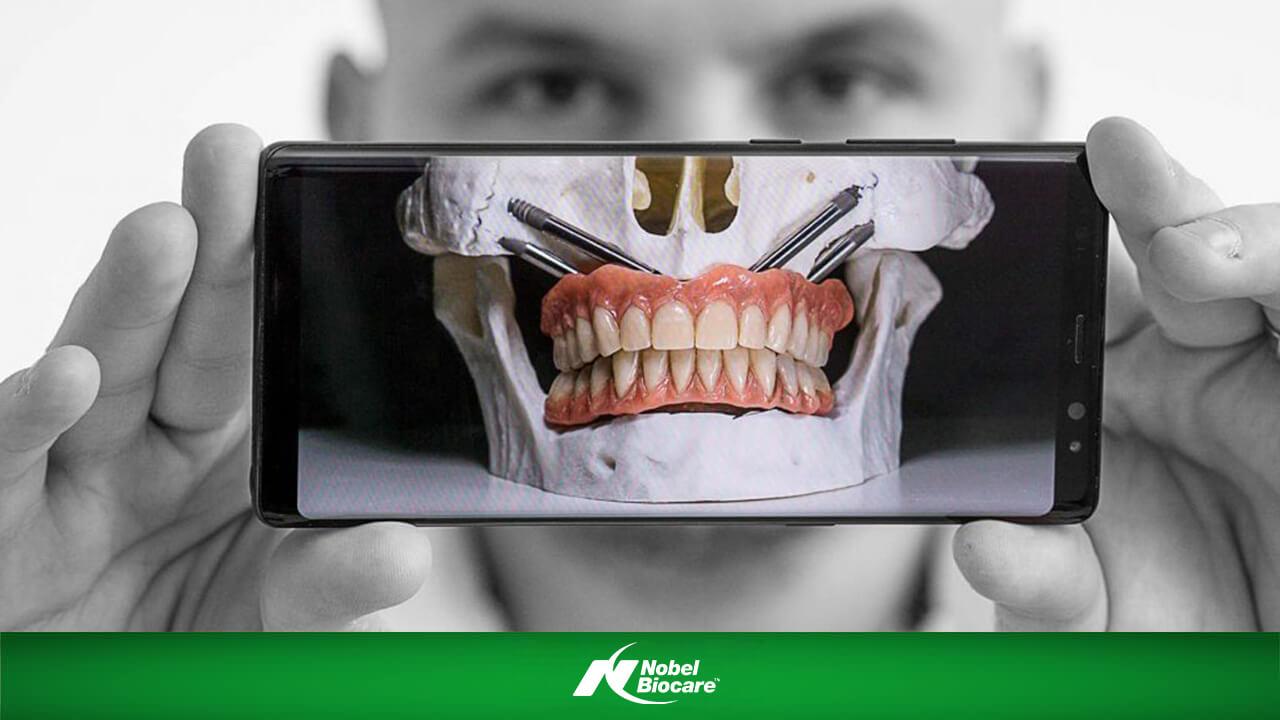 Implanturile zigomatice se ancoreaza in oasele pometilor, deasupra osului maxilar