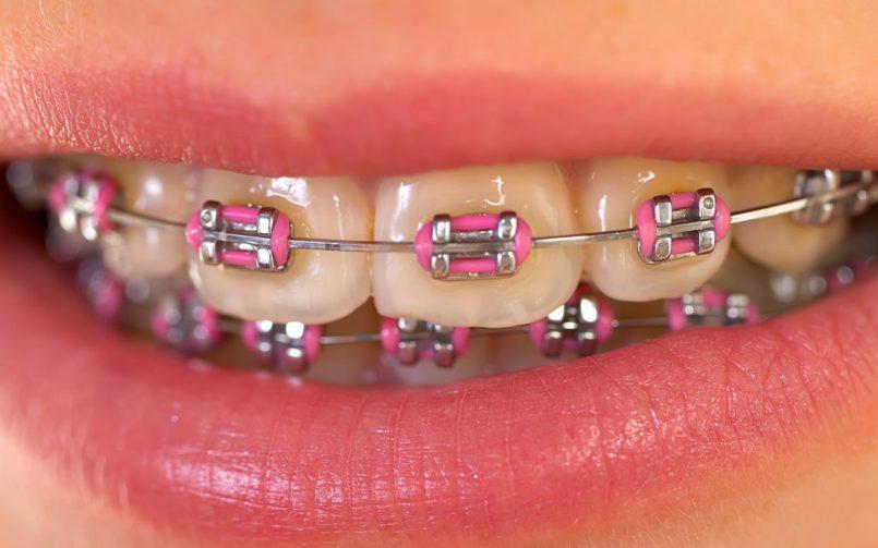 Cum să-ți faci igiena dentară în mod corespunzător atunci când porți aparat dentar?