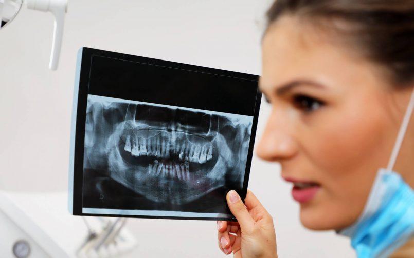 De ce este bine să descoperi cariile dentare din timp?