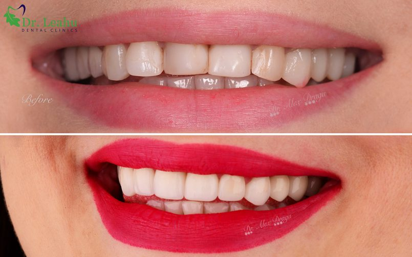 Dinți înainte și după de fațetare - sus dinți fără fațete, jos, varianta cu fațete