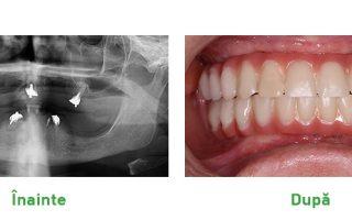 Ce nu știai despre implanturile dentare SKY fast&fixed de la Bredent