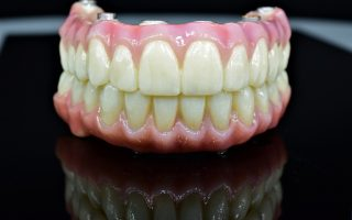 Cum arată cele mai complexe lucrări pe implanturi realizate în laboratorul de tehnică dentară Clinicile Dr. Leahu | FOTO