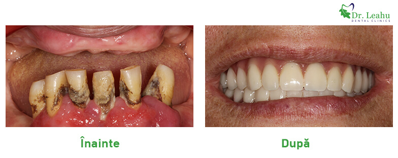 Pacient cu dinti putini si afectati, cu dantura refecuta cu implant dentar rapid - dinti intr-o zi - foto inainte si dupa