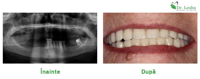 Lucrare dentara completa pe implanturi dentare Sky fast and fixed de la Bredent - stanga poza cu radiografia de dinainte de interventie