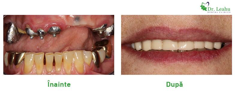 Foto inainte: dantura cu probleme, dinti metalici. Foto dupa interventie - dantura alba frumoasa, implant dentar in 24 de ore