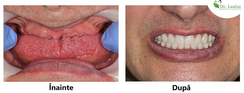 Colaj de fotografii cu dantura inainte si dupa: persoana fara dinti, acum cu dantura completa dupa implanturi dentare Bredent