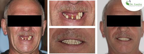Barbat cu dantura refacuta, prin implant dentar rapid - colaj de patru poze, inainte de interventie si dupa