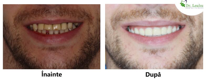Tanar cu dinti perfecti, dupa interventia cu implanturi dentare Sky fast and fixed - foto inainte si dupa