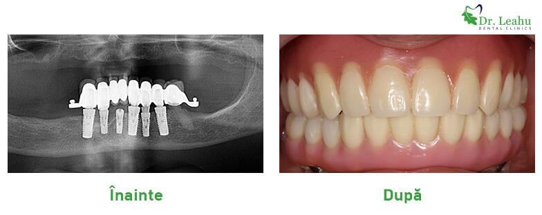 Persoana cu dantura frumoasa, cu lucrare pe implanturi dentare Sky fast and fixed de la Bredent si imagine cu radiografia dentara
