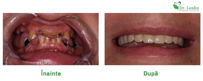 Persoana cu dantura refacuta, cu implant dentar in 24 de ore - colaj de poze inainte si dupa