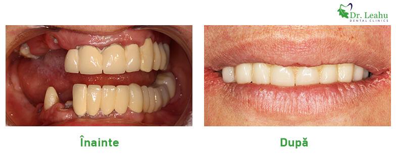 Pacient care a avut dinti lipsa si i-au fost puse implanturi dentare rapide - colaj poze inainte si dupa