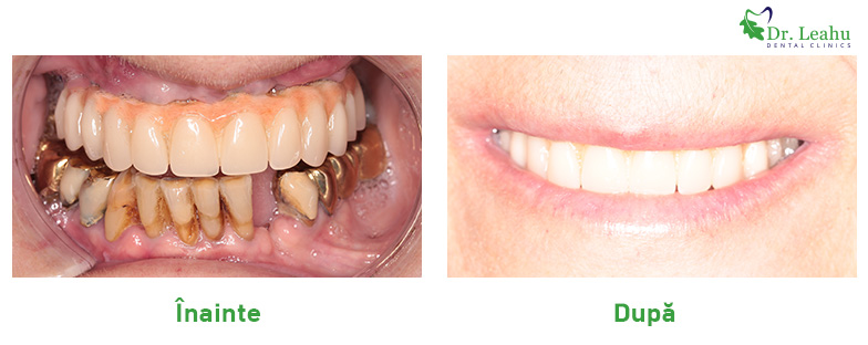 Stanga: foto cu dantura initiala si lucrari metalice. Foto dreapta - dantura refacuta, lucrare noua pe implant dentar in 24 de ore