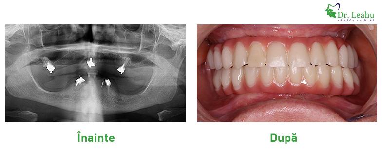 Radiografie pacient cu implanturi dentare si lucrare pe implanturi - poze inainte si dupa