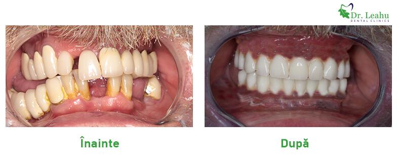 Barbat cu dantura refacuta cu implanturi dentare Sky fast and fixed de la Bredent - foto inainte si dupa