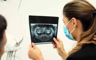 Cât costă o radiografie dentară și cât de sigură este