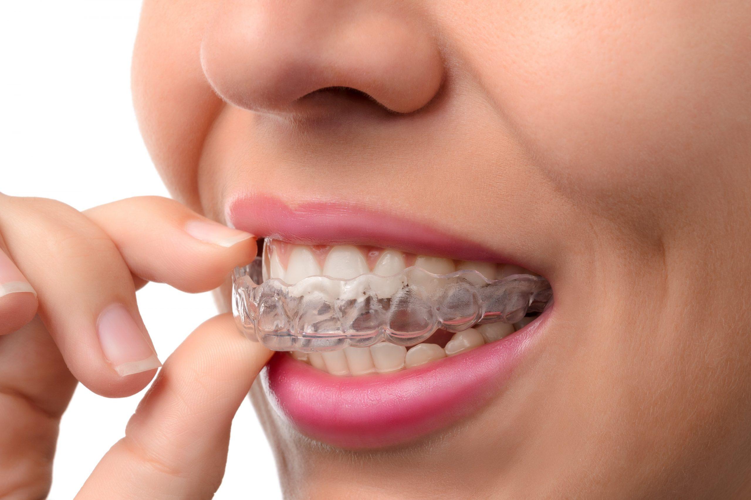 Femeie in timp ce isi pune aparatul dentar Invisalign