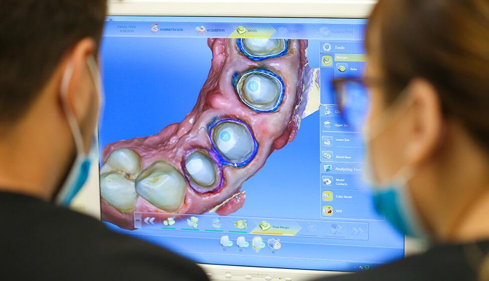 Medici stomatologi privind monitorul pe care se poate vedea maxilarul pacientului si dintii care urmeaza sa fie realizati