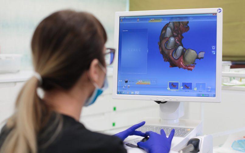 Medic protetician si sistemul CEREC CAD/CAM