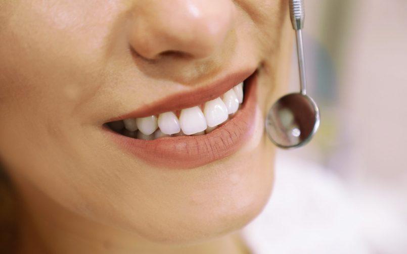 Femeie care zambeste in timpul unui control stomatologic pentru bruxism