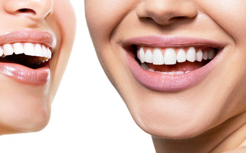 Femeie care zambeste larg dupa ce a ales un tratament de albire dinților la stomatolog