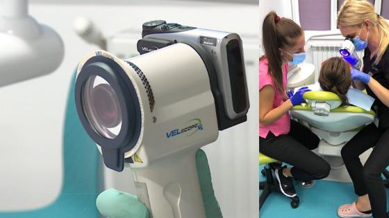 aparat velscope pentru depistare cancer oral in stanga si in dreapta medic si asistenta care foloseste aparatul