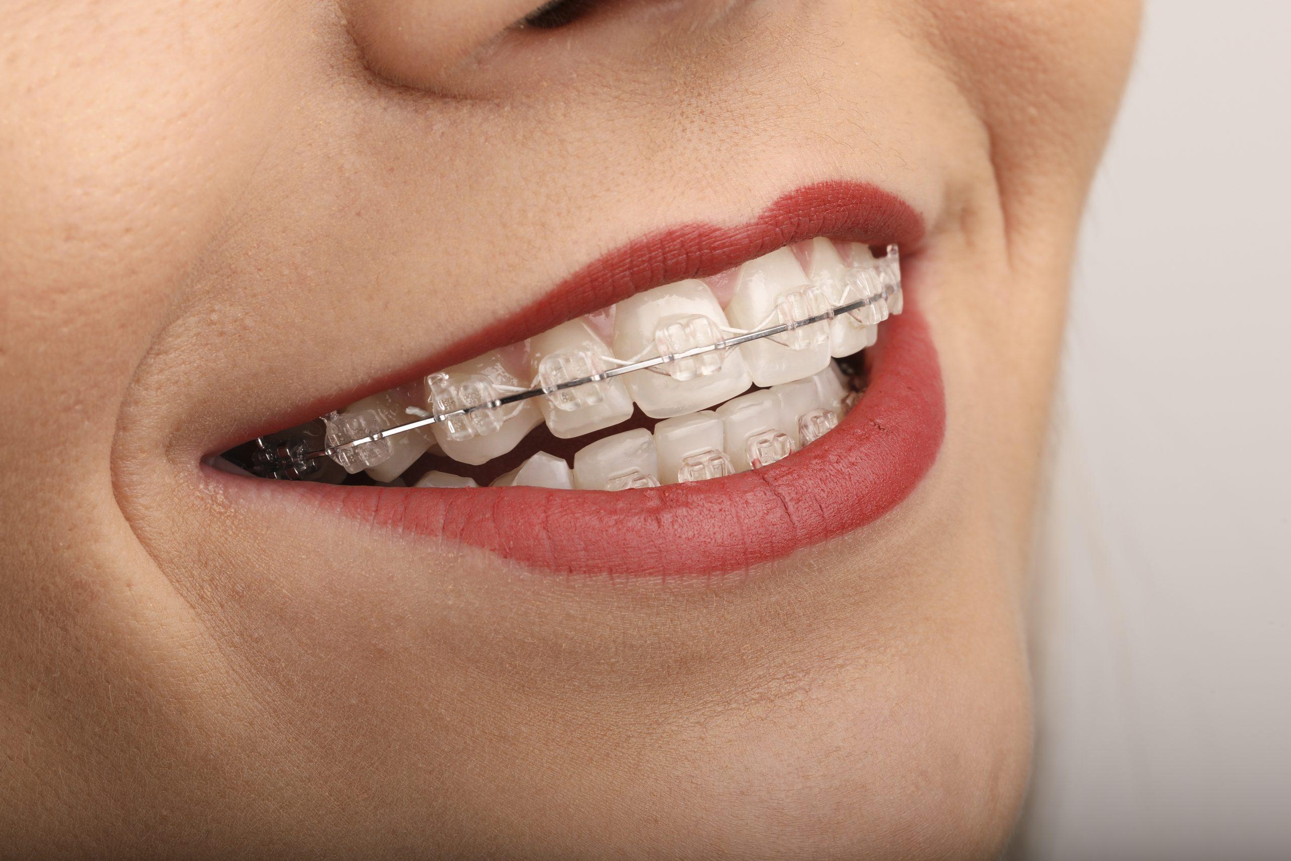 Zambet cu aparat dentar Safir
